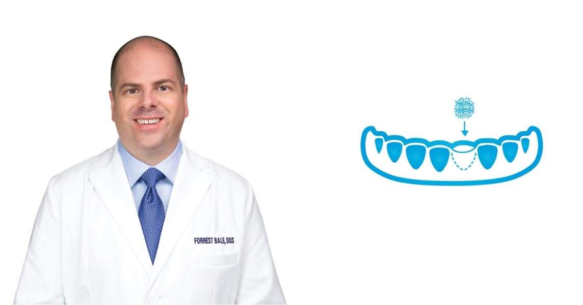 Bone Grafting in Russellville, AR